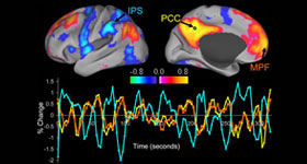 Functional Magnetic Resonance Neurofeedback